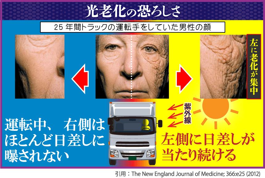 光老化の恐ろしさ