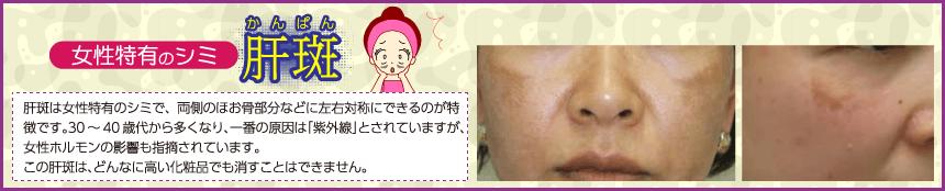 女性特有のシミ「肝斑」