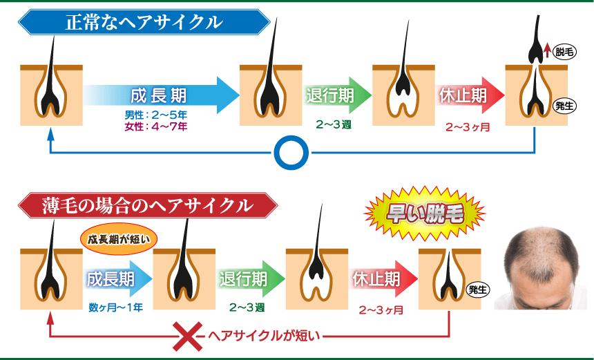 正常なヘアサイクルと薄毛の場合のヘアサイクル